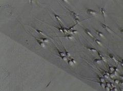 Съемка с микроскопа. Биологически активный материал.